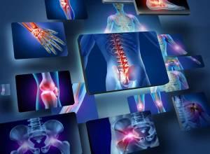 Акулий хрящ - эффективный препарат для лечения заболеваний суставов